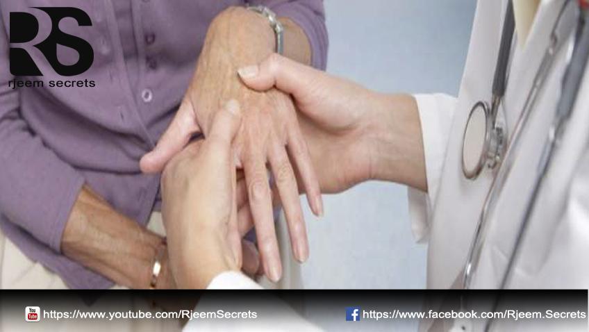 علاج الروماتيزم 2