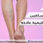 دوالي الساقين : الدوالي في الساقين وكيفية علاج الدوالي