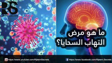 ما هو التهاب السحايا؟