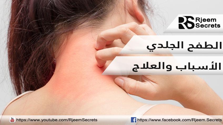 الطفح الجلدي :علاج ظهور بقع حمراء على الجلد