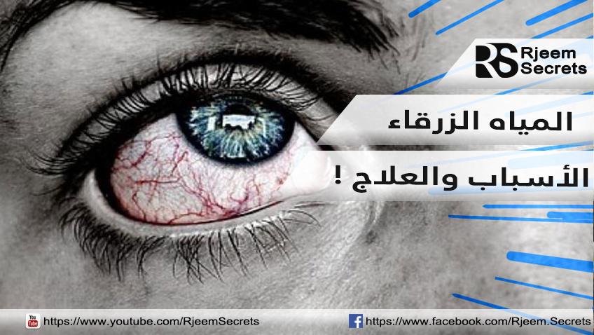 المياه الزرقاء في العين: الأسباب والأعراض وكيفية العلاج