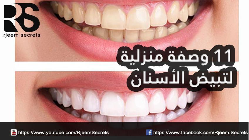 تبيض الأسنان بخلطات طبيعية منزلية