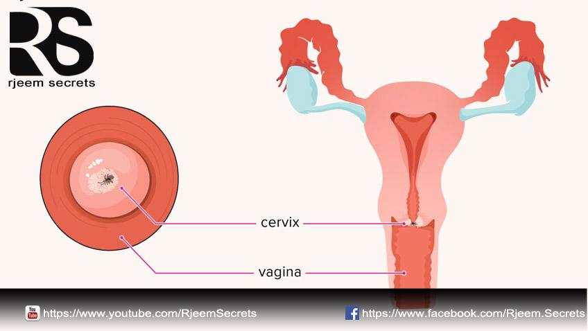 سرطان عنق الرحم الاسباب والاعراض